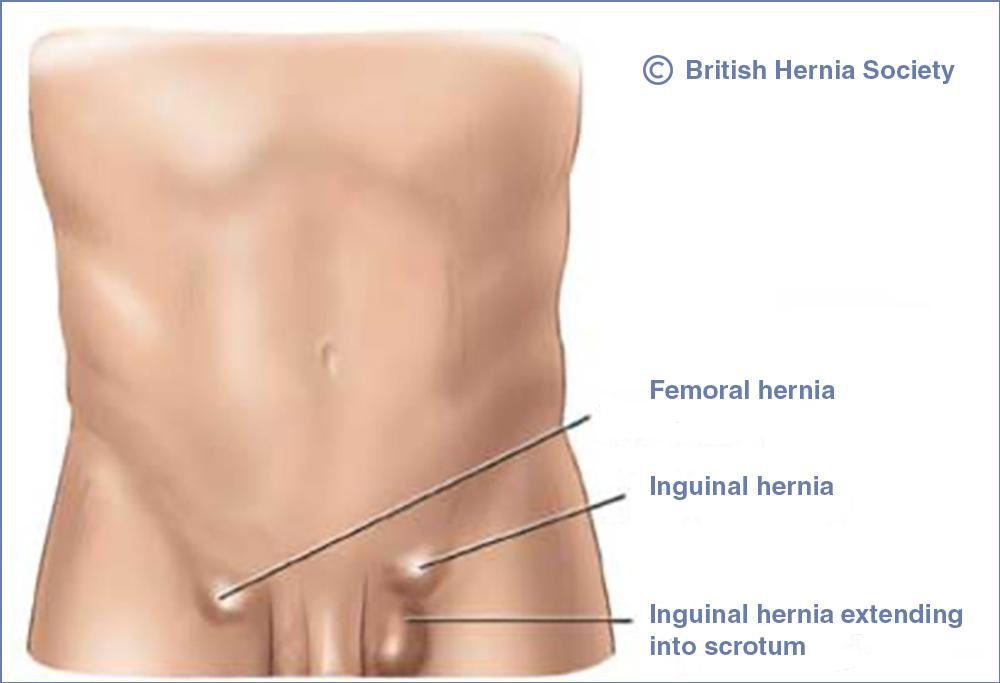 inguinal hernia the british hernia centre - 1000×683